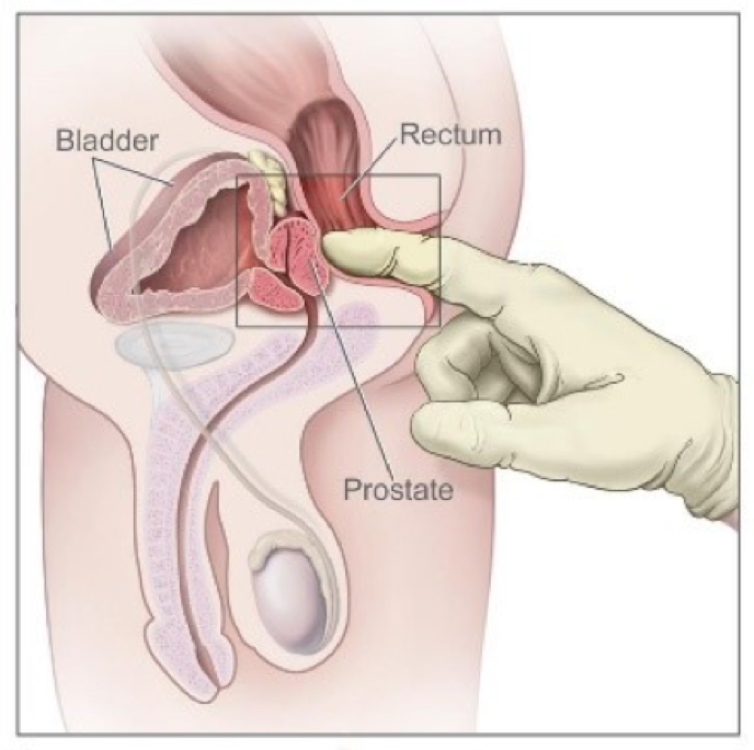 A gloved finger inserted into the anus.