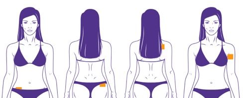 Diagram of four places the contraceptive patch can be placed on. One is by the person's abdomen, another on the upper butt, another on the upper back, and another on the arm.