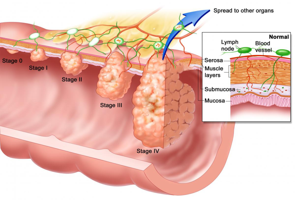 Does hpv cause penile cancer, Hpv strain penile cancer