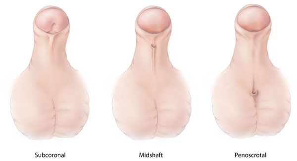 Three different penises with hypospadia. One subcoronal, one midshaft, and one penoscrotal penis.