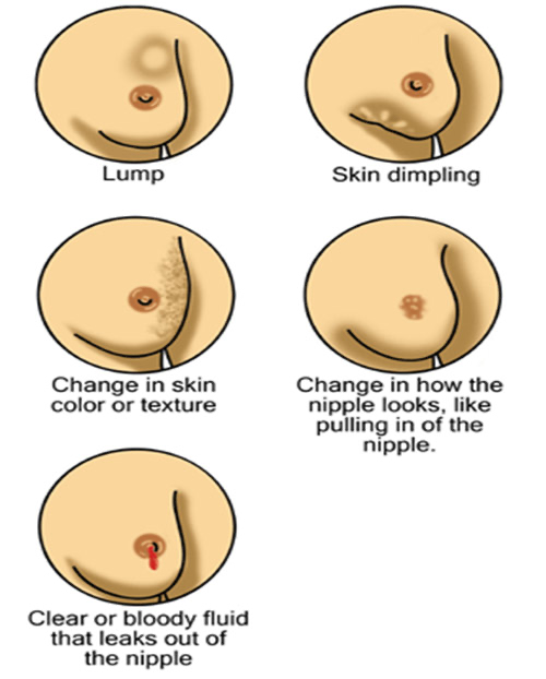 Diagram of breast changes and symptoms of cancer.