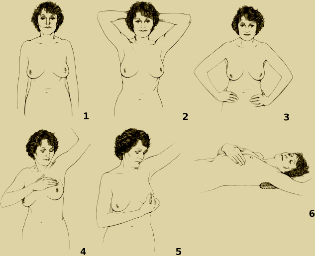 A sketched person following a six-step breast self-examination.