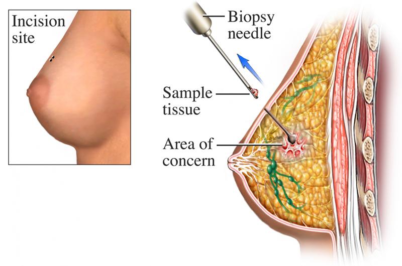 Diagram of breast incision.