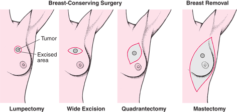 Diagram of breast-conserving surgery and breast removal.