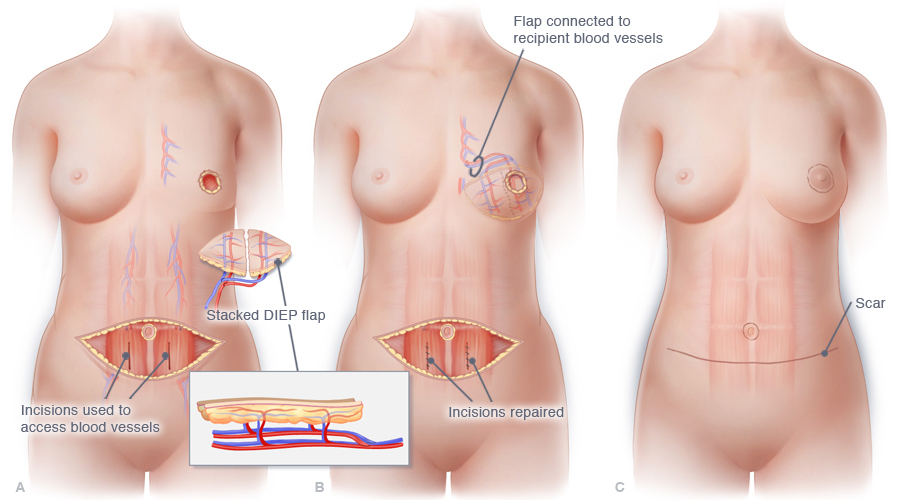 Body diagram showing incisions to access blood vessels.