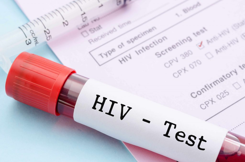 """A test tube labeled """"HIV - Test"""""""