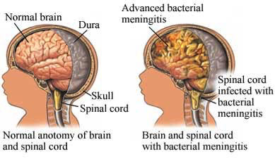 Diagram of a brain and spinal cord. Another diagram of a brain and spinal cord with bacterial meningitis.