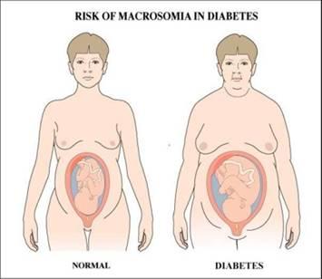 http://www.michigancerebralpalsyattorneys.com/wp-content/uploads/2014/09/Fetal_Macrosomia-3.jpg