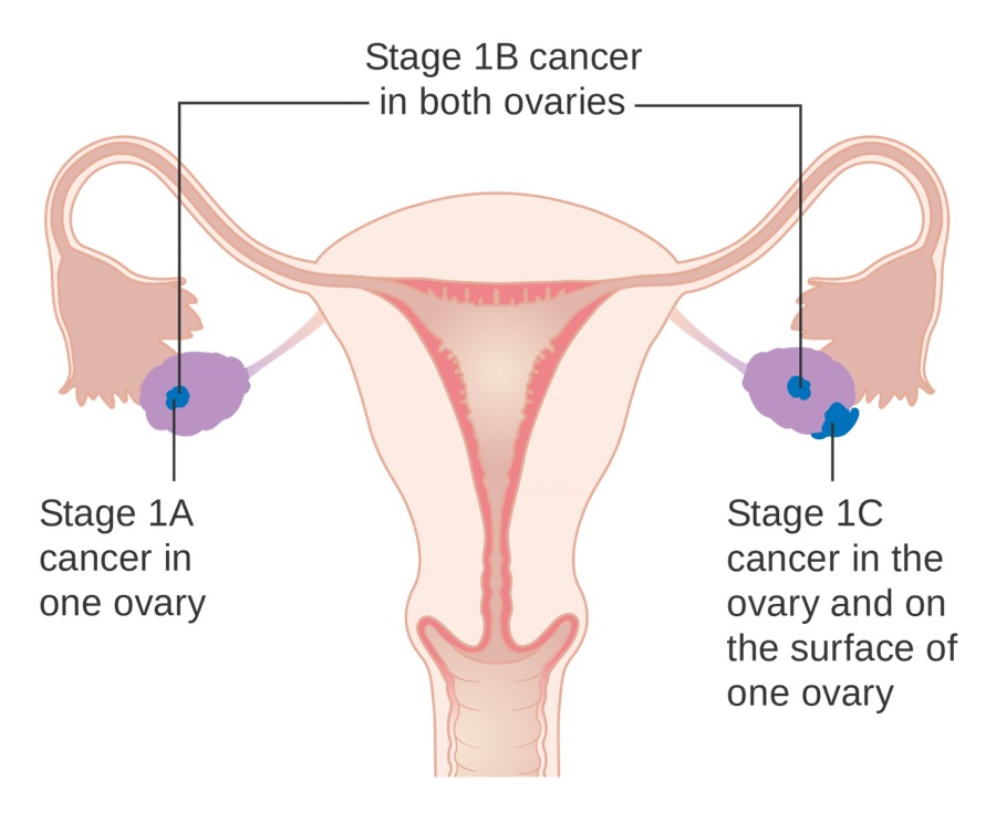 An anatomical diagram of stage 1A, 1B, and 1C cancer in the ovaries.