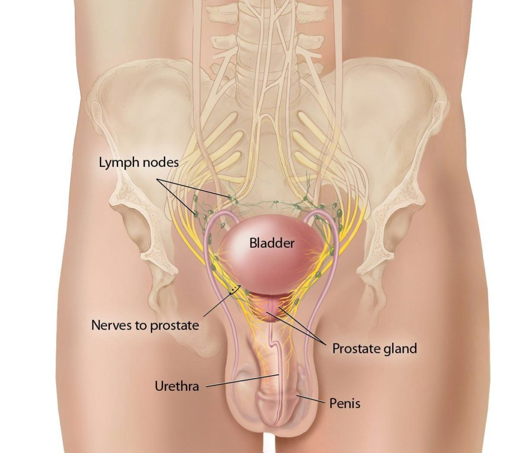 An anatomical diagram at the hip of a penis, urethra, prostate gland, nerves to prostate, lymph nodes, and bladder.