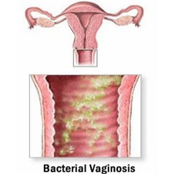 A diagram of bacterial vaginosis.