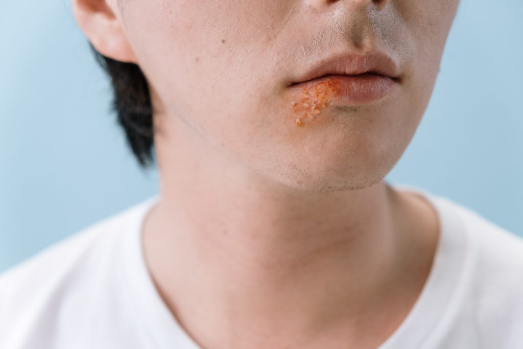 A person's mouth covered in herpes or cold sores.