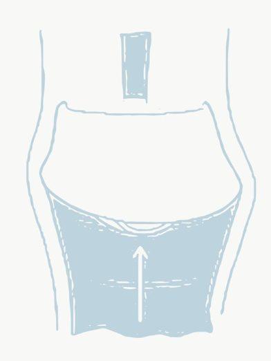 Insertion of cervical cap directly below cervix